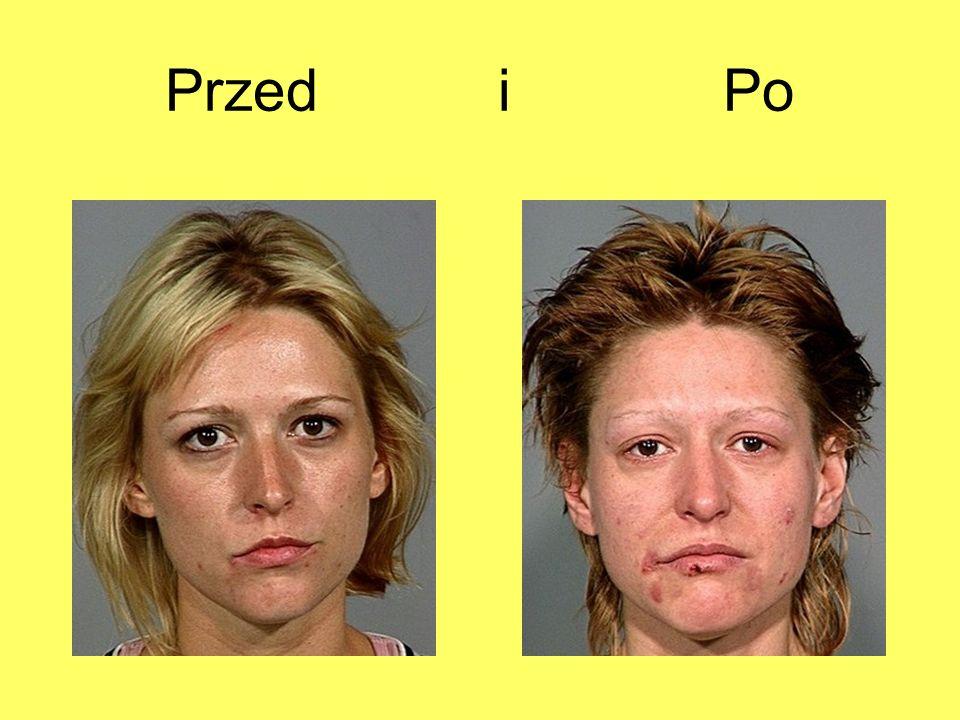 Przed i Po 10