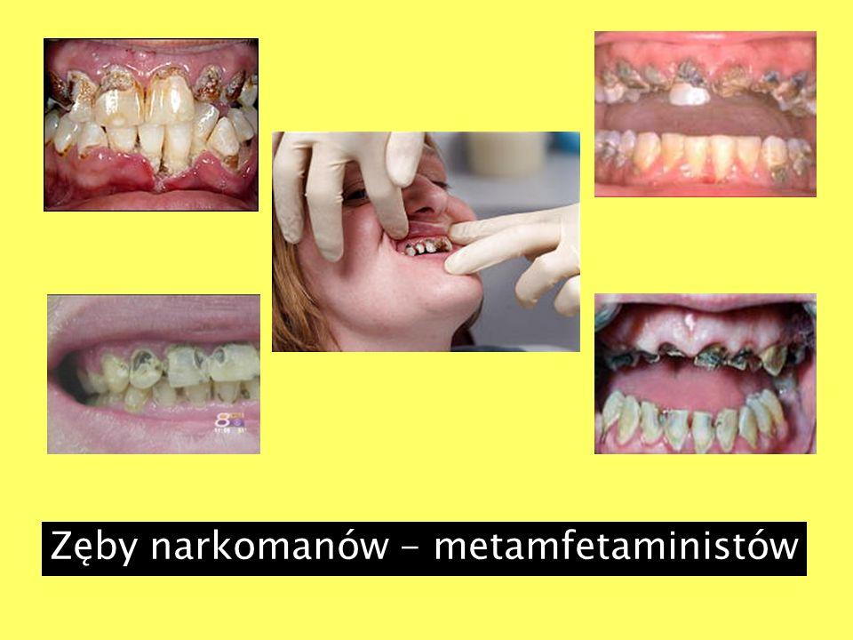 Zęby narkomanów - metamfetaministów