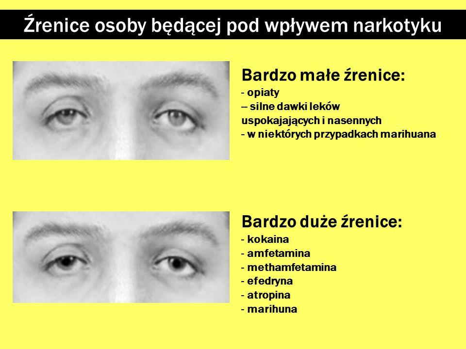 Źrenice osoby będącej pod wpływem narkotyku