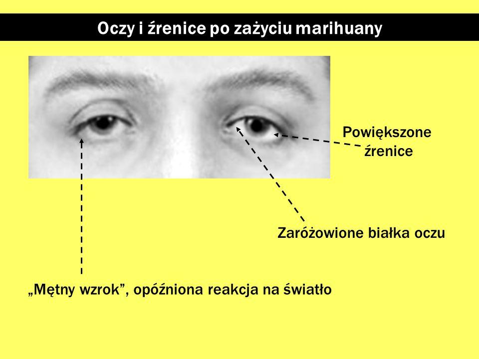 Oczy i źrenice po zażyciu marihuany