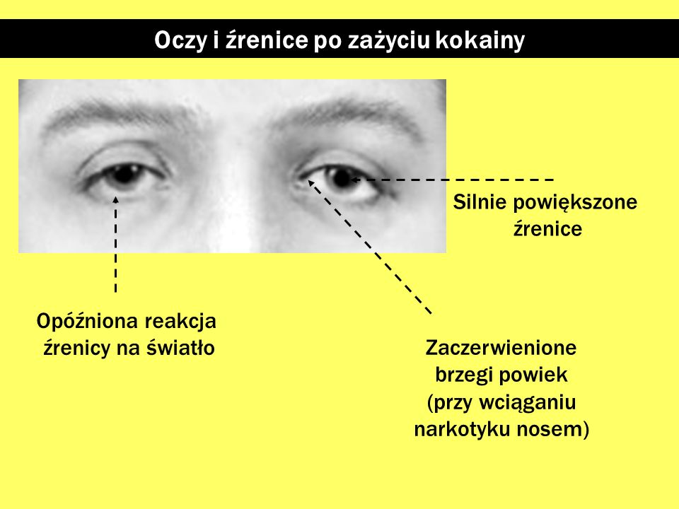 Oczy i źrenice po zażyciu kokainy