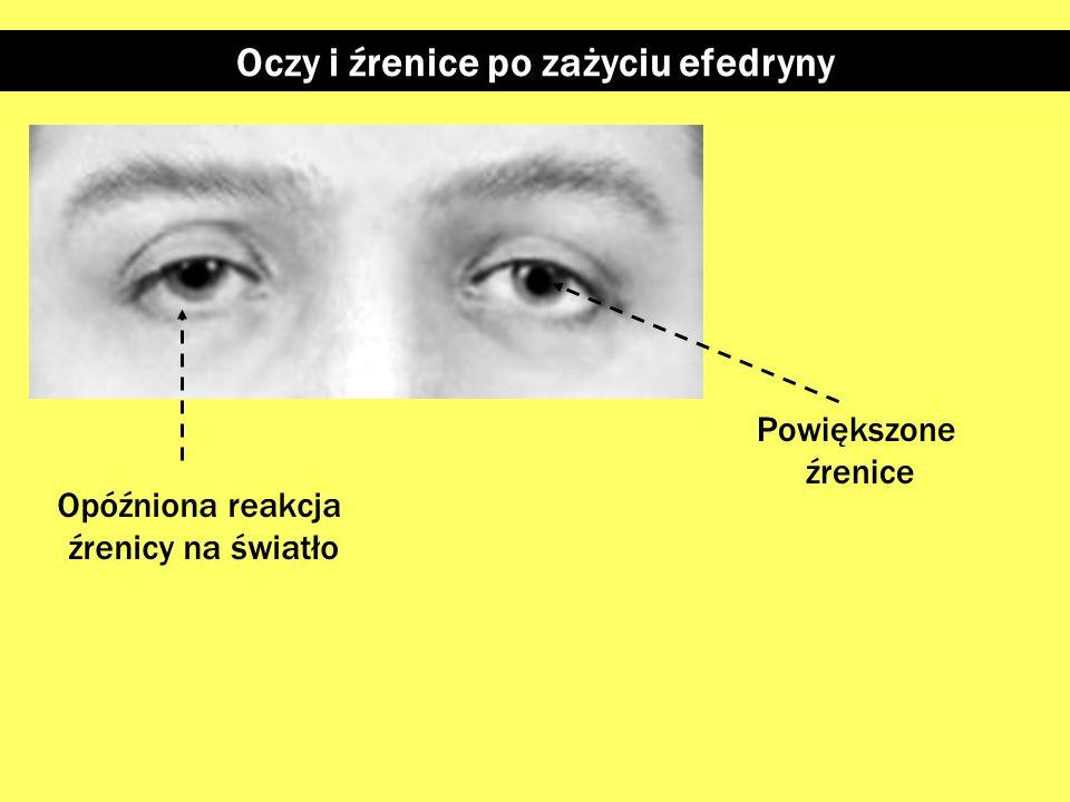 Oczy i źrenice po zażyciu efedryny