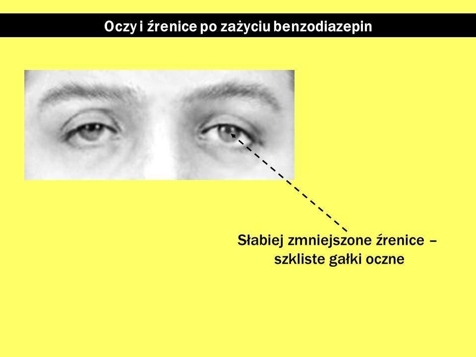 Oczy i źrenice po zażyciu benzodiazepin