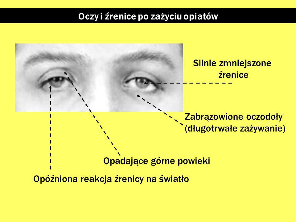 Oczy i źrenice po zażyciu opiatów