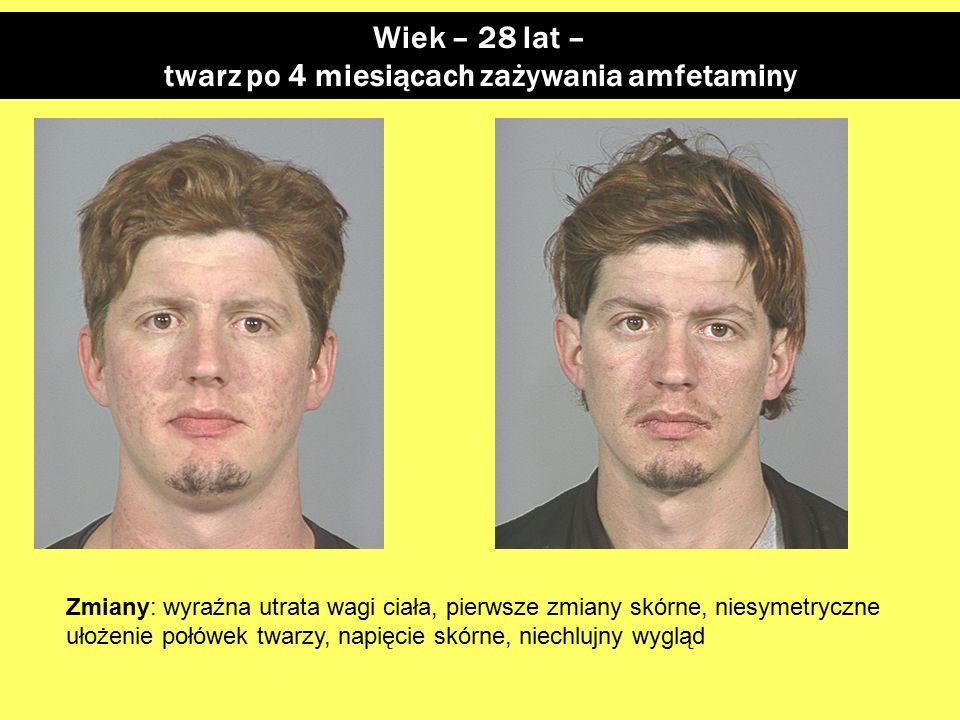 twarz po 4 miesiącach zażywania amfetaminy