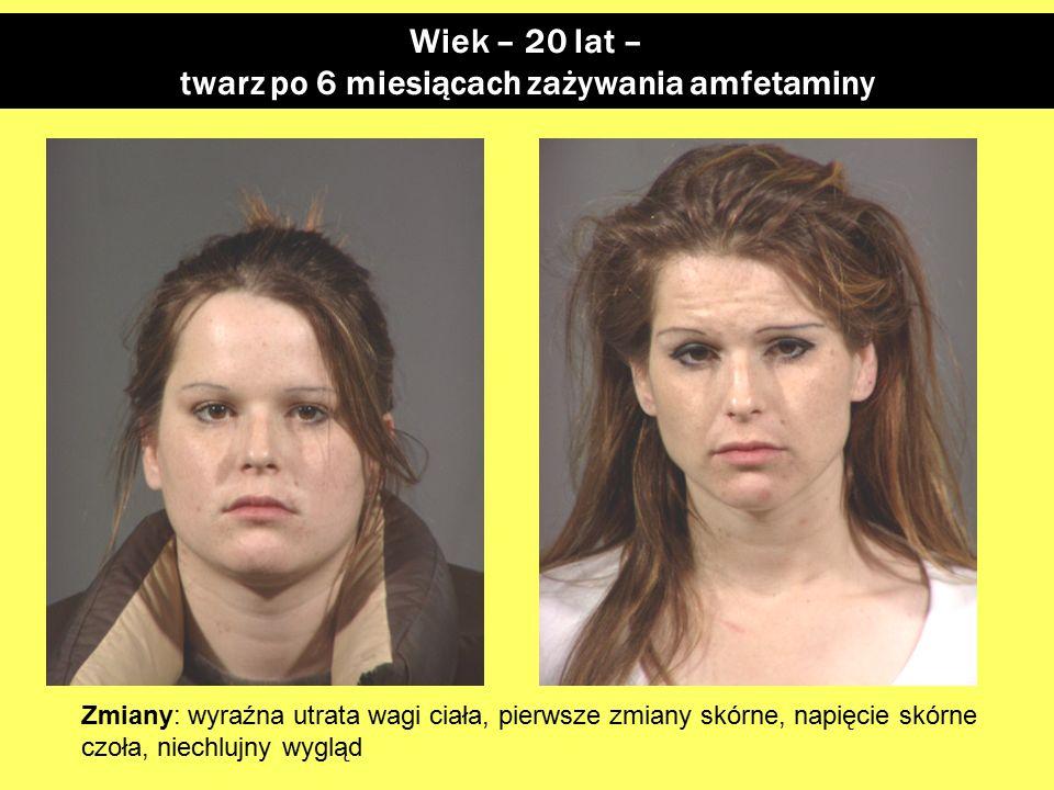 twarz po 6 miesiącach zażywania amfetaminy