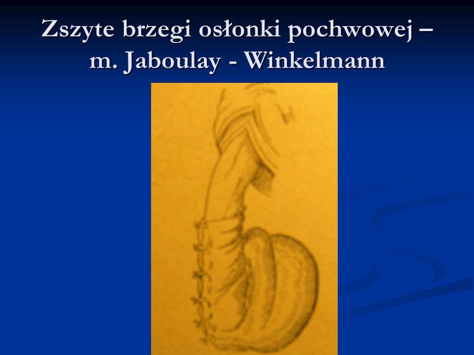 Zszyte brzegi osłonki pochwowej – m. Jaboulay - Winkelmann