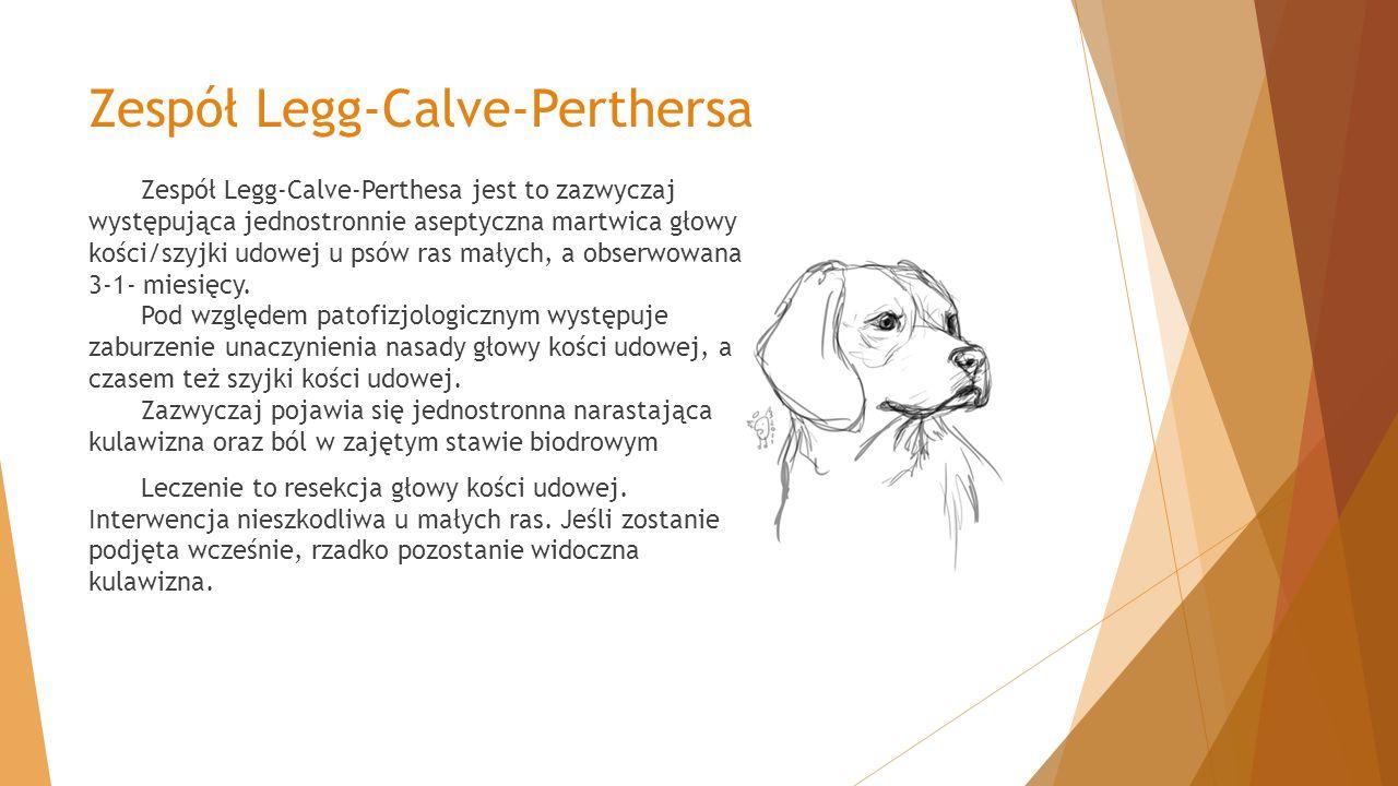 Zespół Legg-Calve-Perthersa