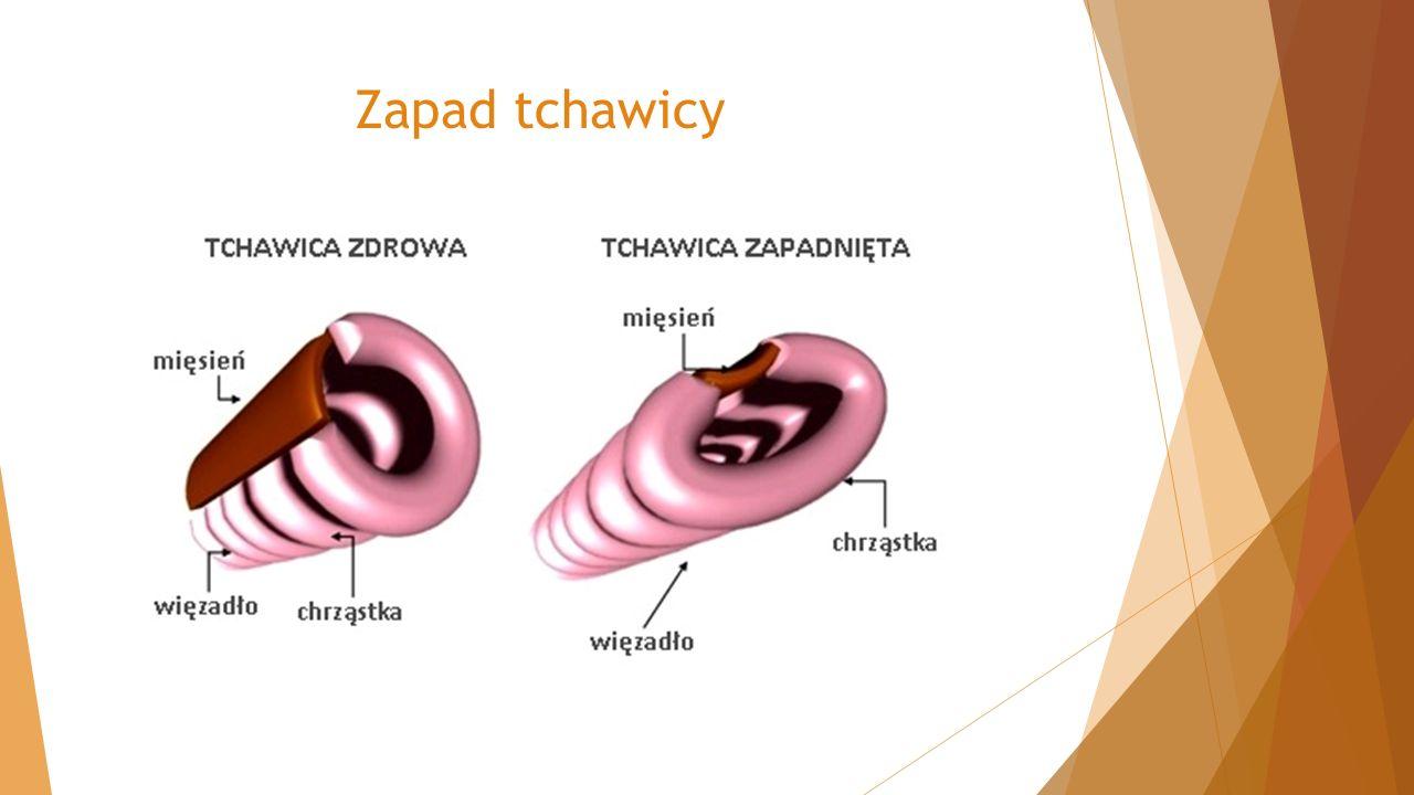 Zapad tchawicy
