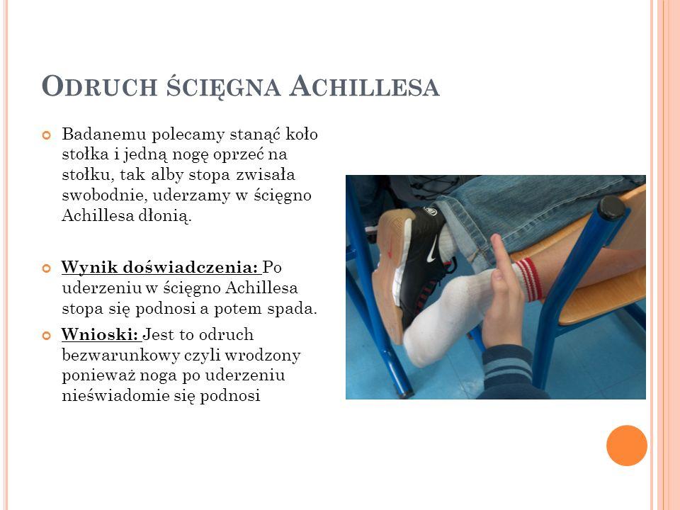 Odruch ścięgna Achillesa