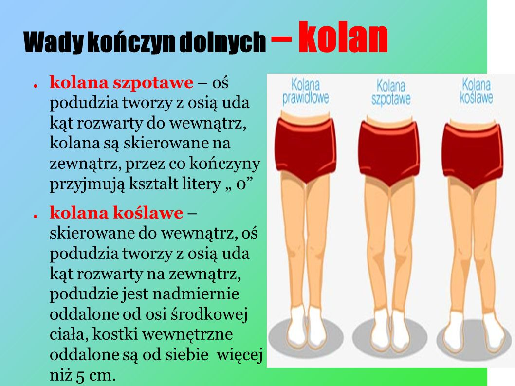 Wady kończyn dolnych – kolan