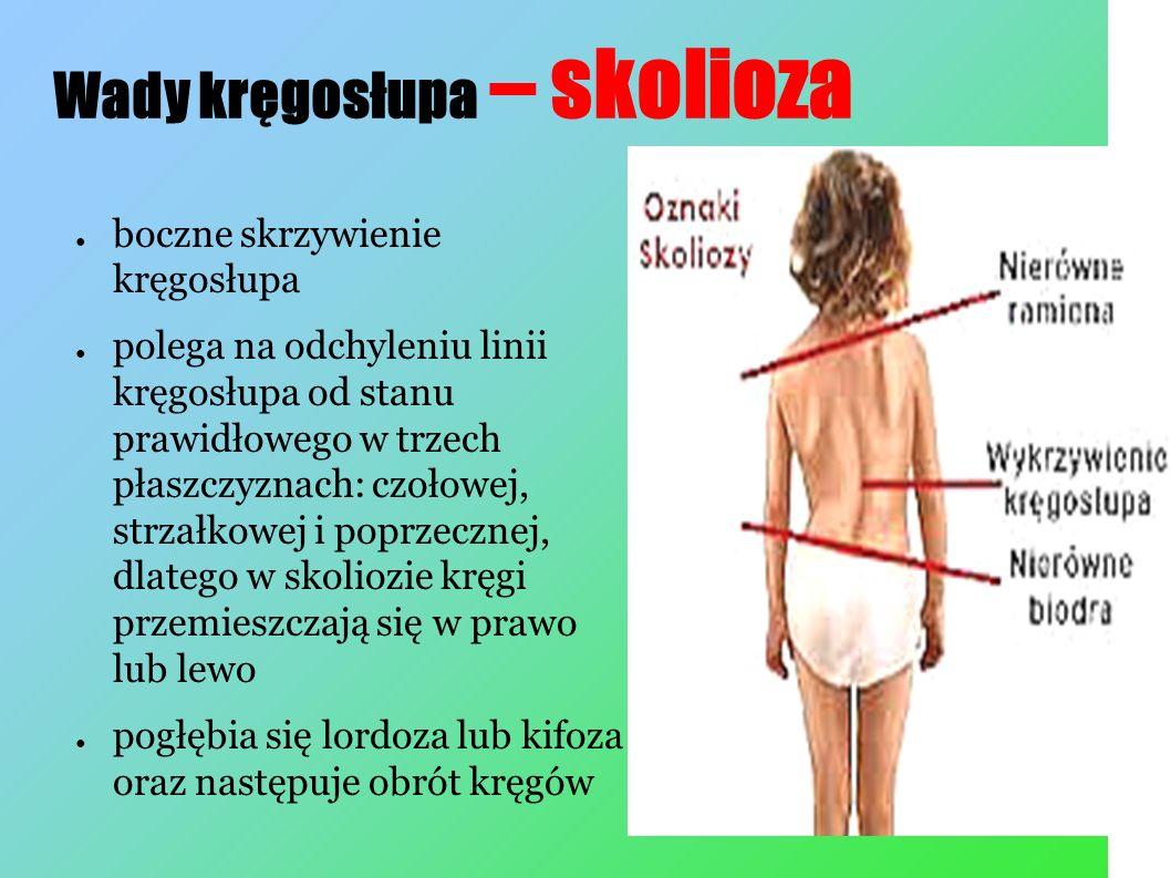 Wady kręgosłupa – skolioza