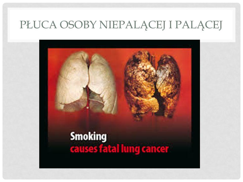 Płuca osoby niepalącej i palącej