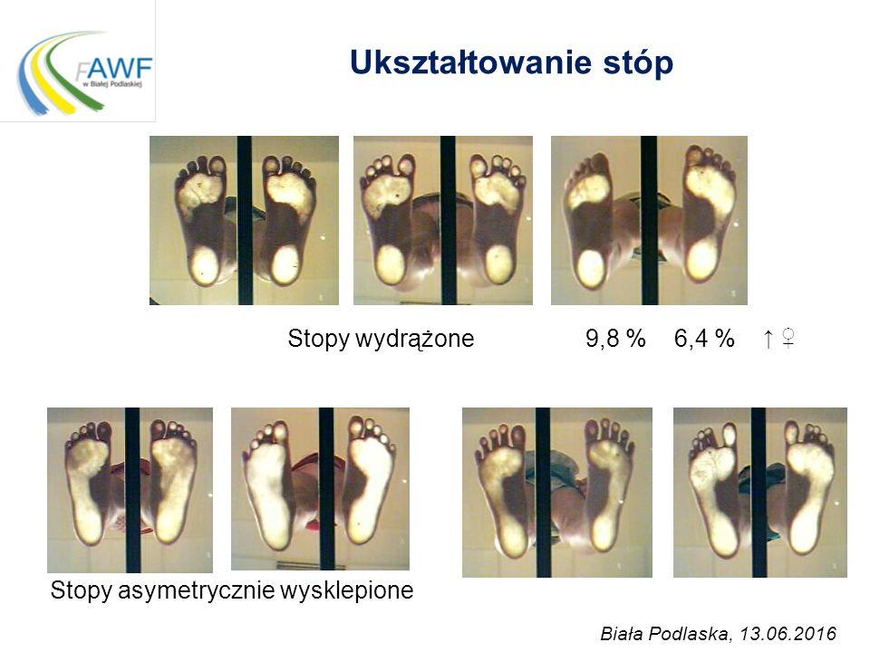 Ukształtowanie stóp Stopy wydrążone 9,8 % 6,4 %