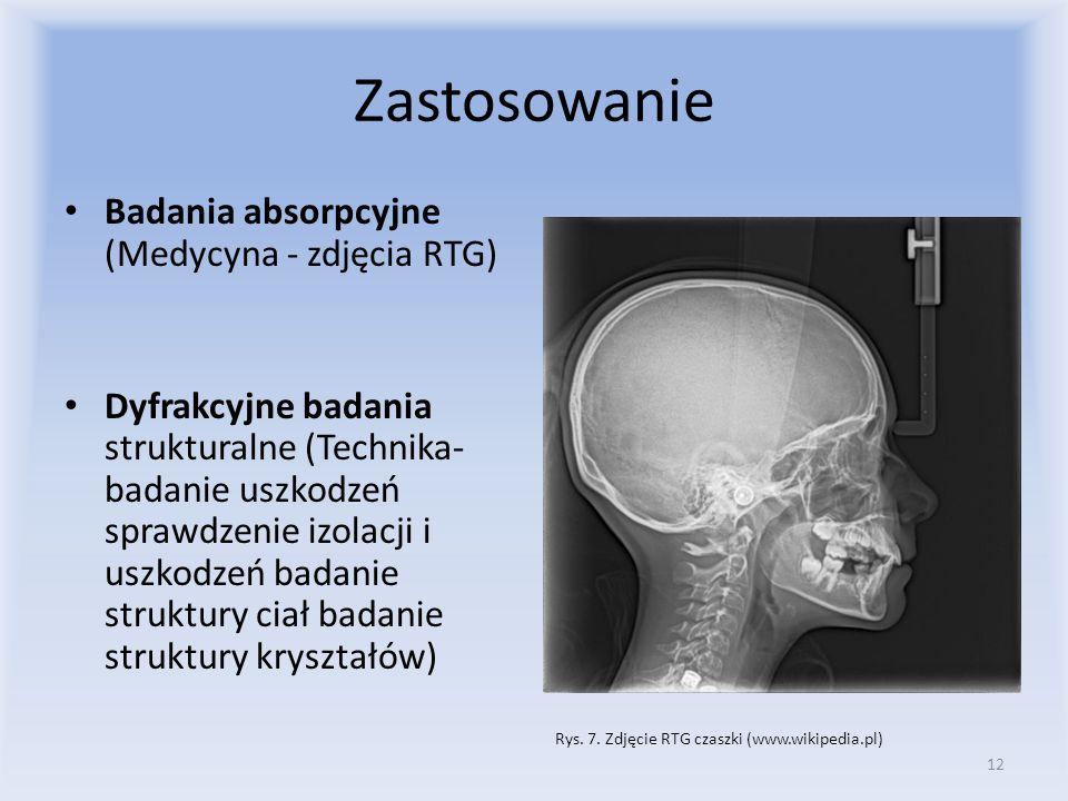 Rys. 7. Zdjęcie RTG czaszki (www.wikipedia.pl)