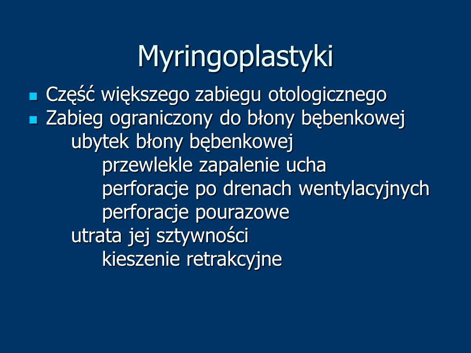 Myringoplastyki Część większego zabiegu otologicznego