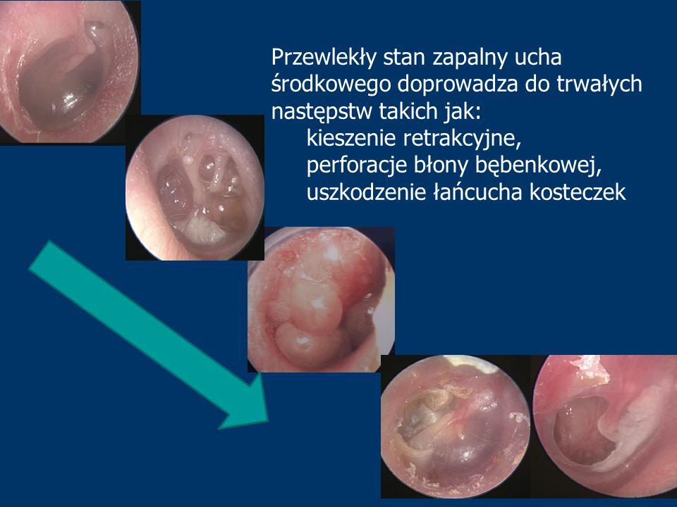 Przewlekły stan zapalny ucha środkowego doprowadza do trwałych następstw takich jak: