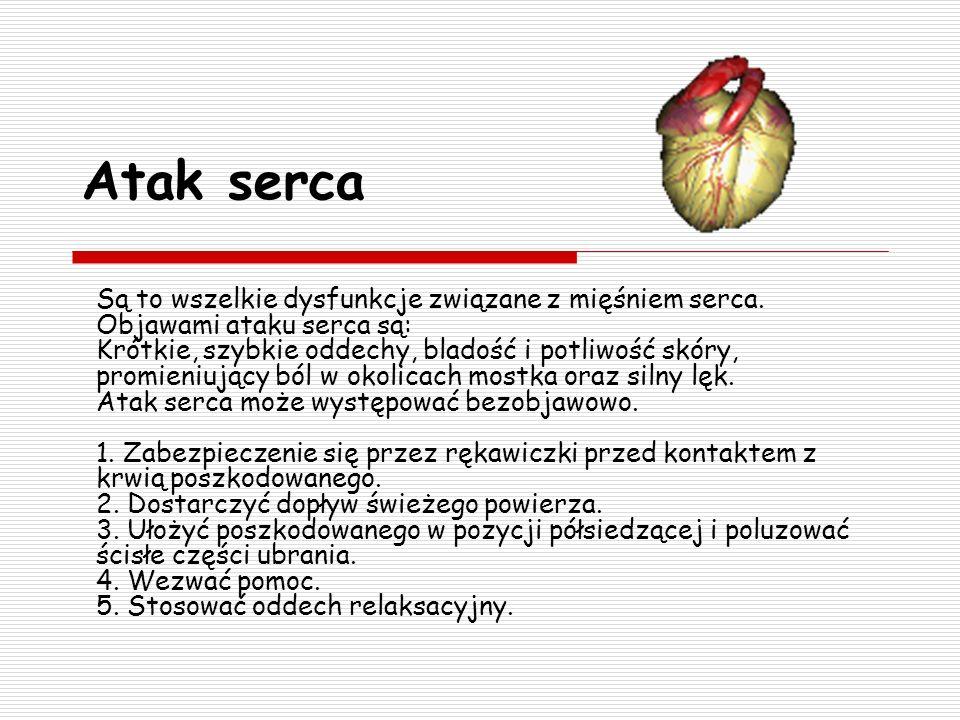 Atak serca