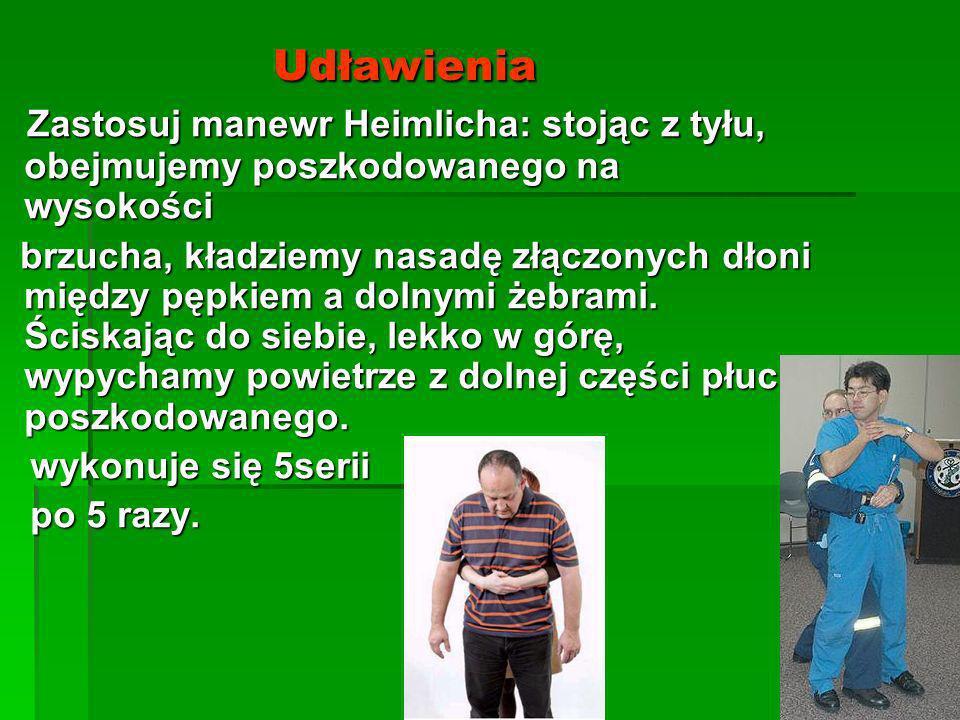 Udławienia Zastosuj manewr Heimlicha: stojąc z tyłu, obejmujemy poszkodowanego na wysokości.