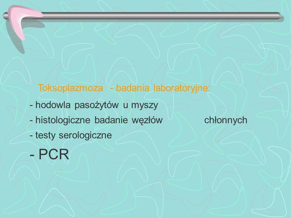 Toksoplazmoza - badania laboratoryjne:
