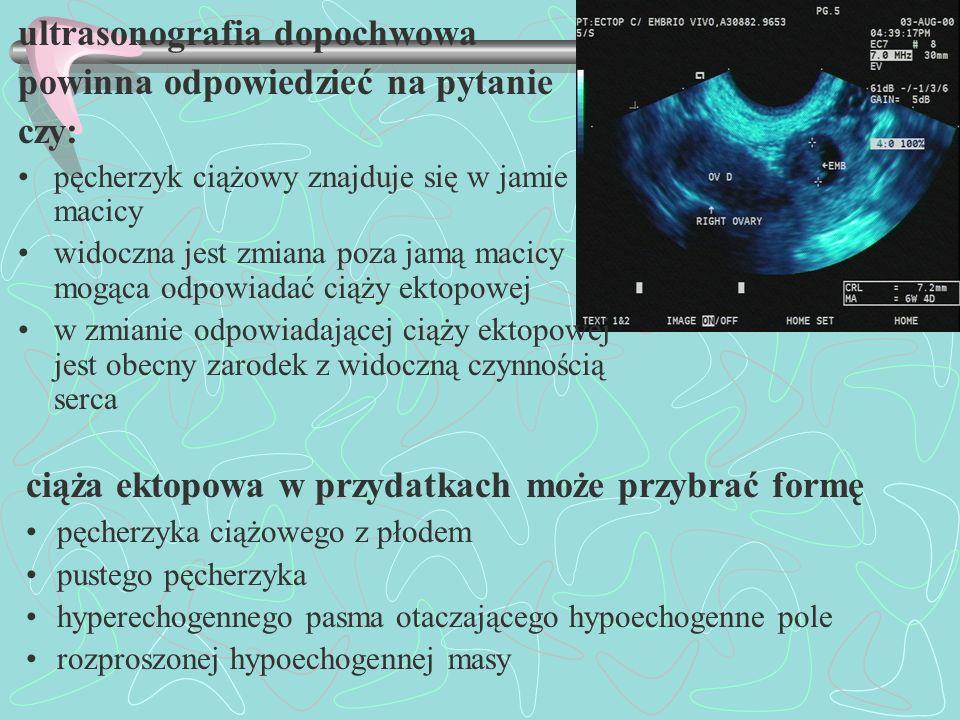 ultrasonografia dopochwowa powinna odpowiedzieć na pytanie czy: