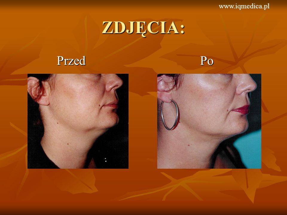www.iqmedica.pl ZDJĘCIA: Przed Po