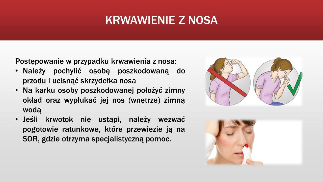 KRWAWIENIE Z NOSA Postępowanie w przypadku krwawienia z nosa: