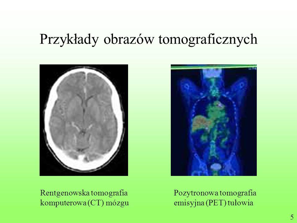 Przykłady obrazów tomograficznych