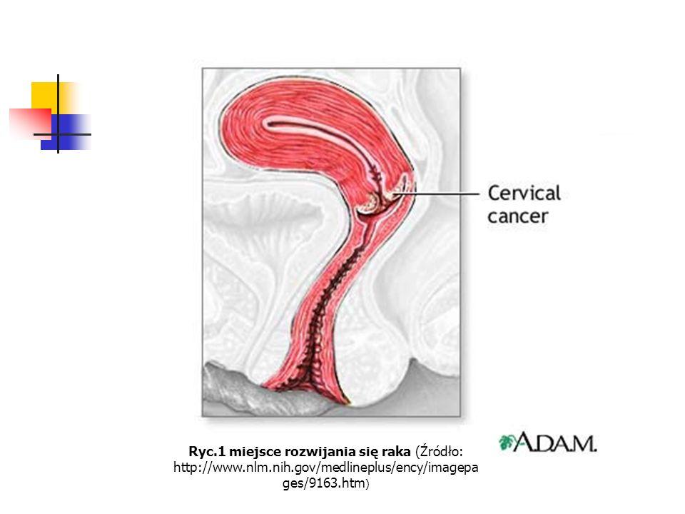 Ryc. 1 miejsce rozwijania się raka (Źródło: http://www. nlm. nih