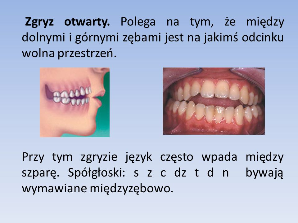 Zgryz otwarty. Polega na tym, że między dolnymi i górnymi zębami jest na jakimś odcinku wolna przestrzeń.