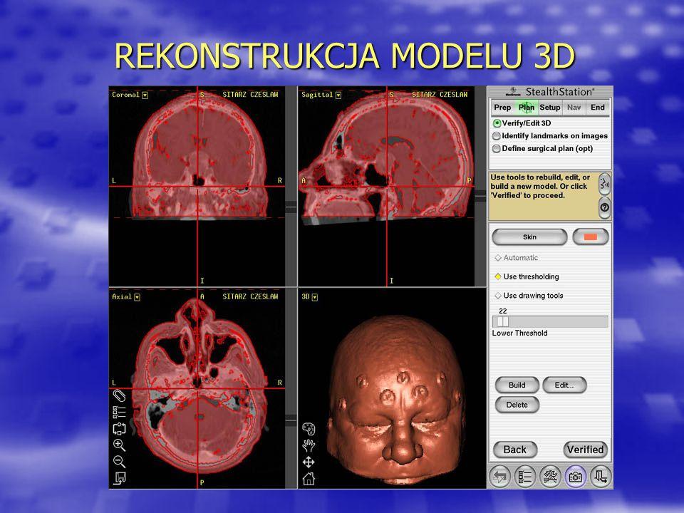 REKONSTRUKCJA MODELU 3D