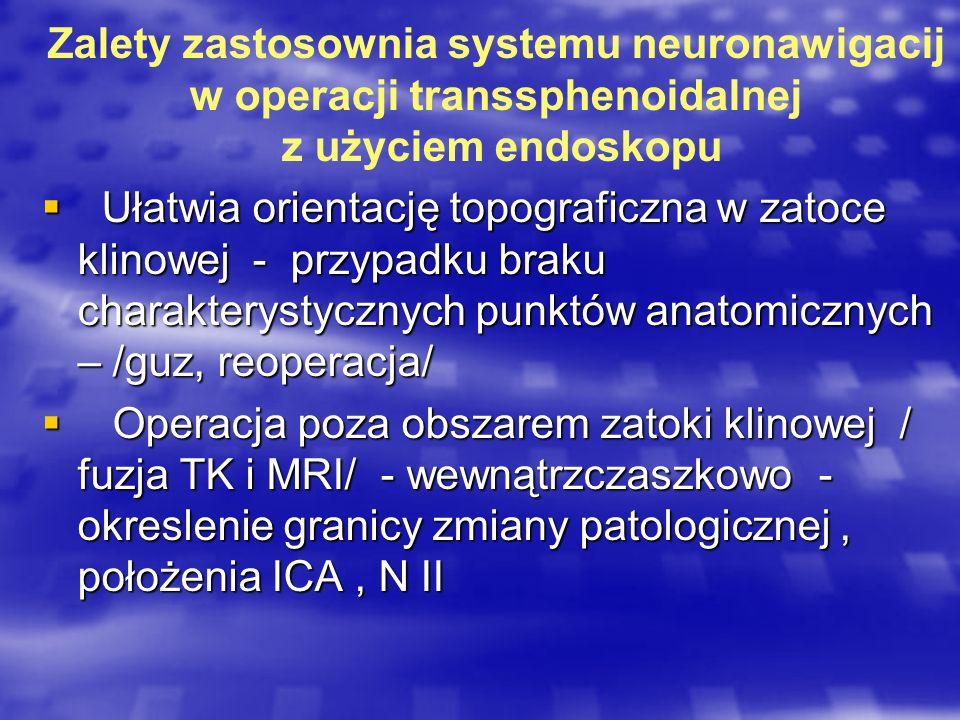 Zalety zastosownia systemu neuronawigacij w operacji transsphenoidalnej z użyciem endoskopu