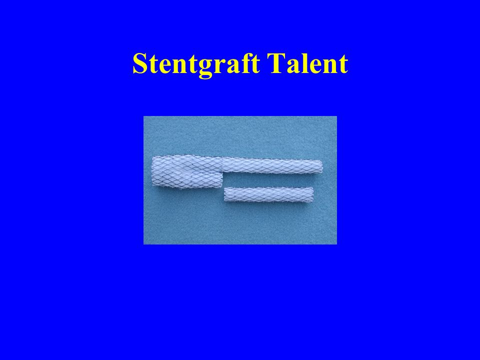 Stentgraft Talent