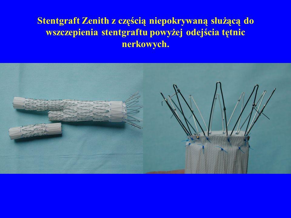 Stentgraft Zenith z częścią niepokrywaną służącą do wszczepienia stentgraftu powyżej odejścia tętnic nerkowych.