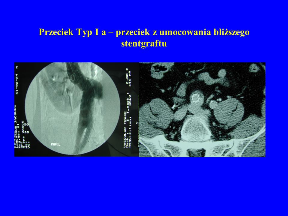 Przeciek Typ I a – przeciek z umocowania bliższego stentgraftu