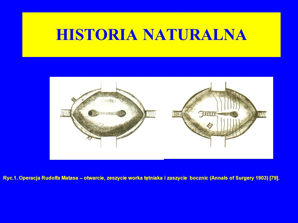 HISTORIA NATURALNA Ryc.1.