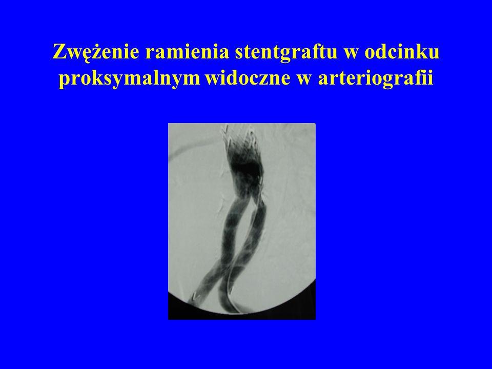 Zwężenie ramienia stentgraftu w odcinku proksymalnym widoczne w arteriografii