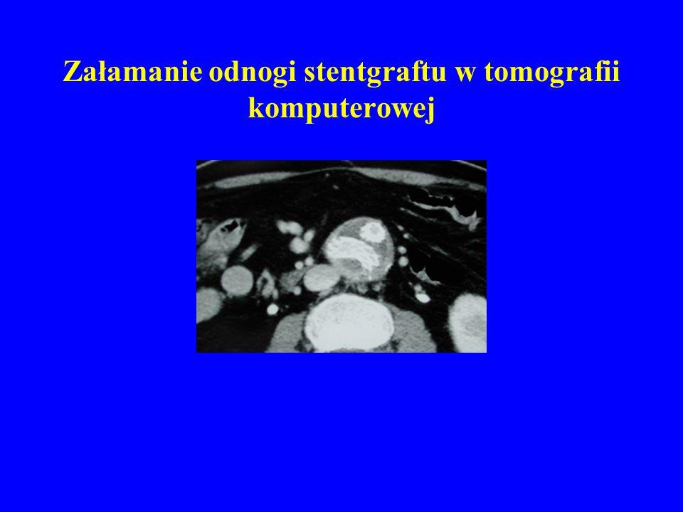 Załamanie odnogi stentgraftu w tomografii komputerowej