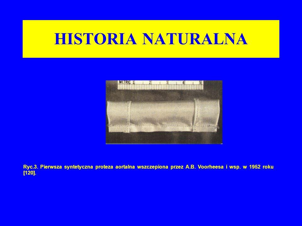 HISTORIA NATURALNA Ryc.3. Pierwsza syntetyczna proteza aortalna wszczepiona przez A.B.