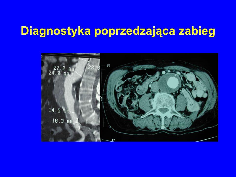 Diagnostyka poprzedzająca zabieg