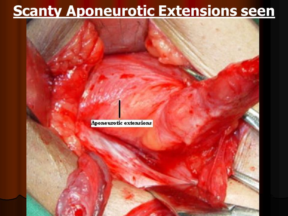 Scanty Aponeurotic Extensions seen