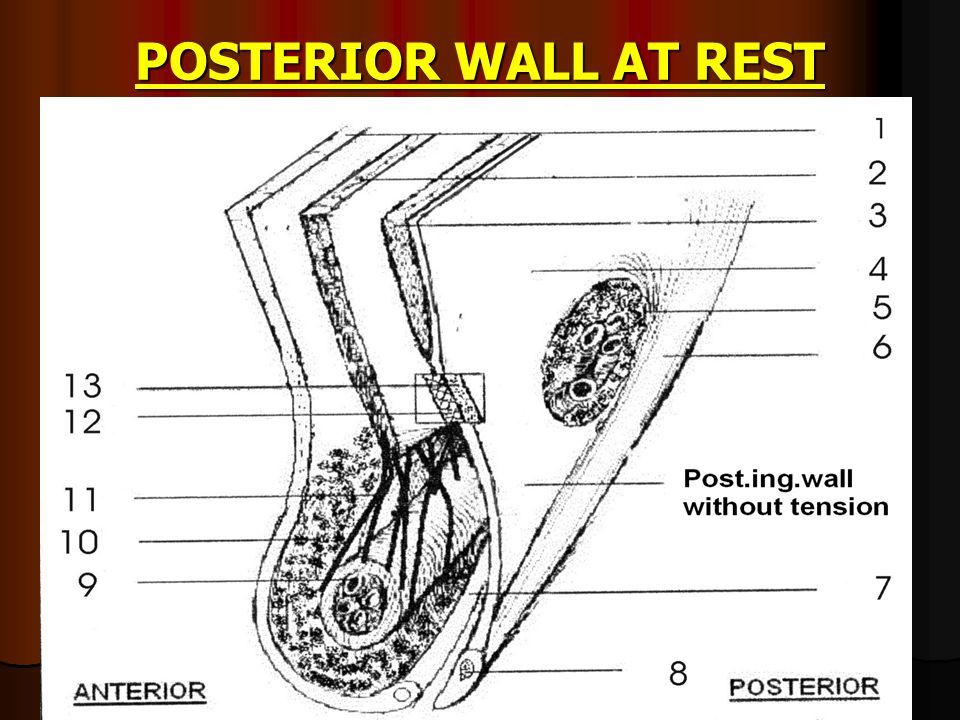 POSTERIOR WALL AT REST