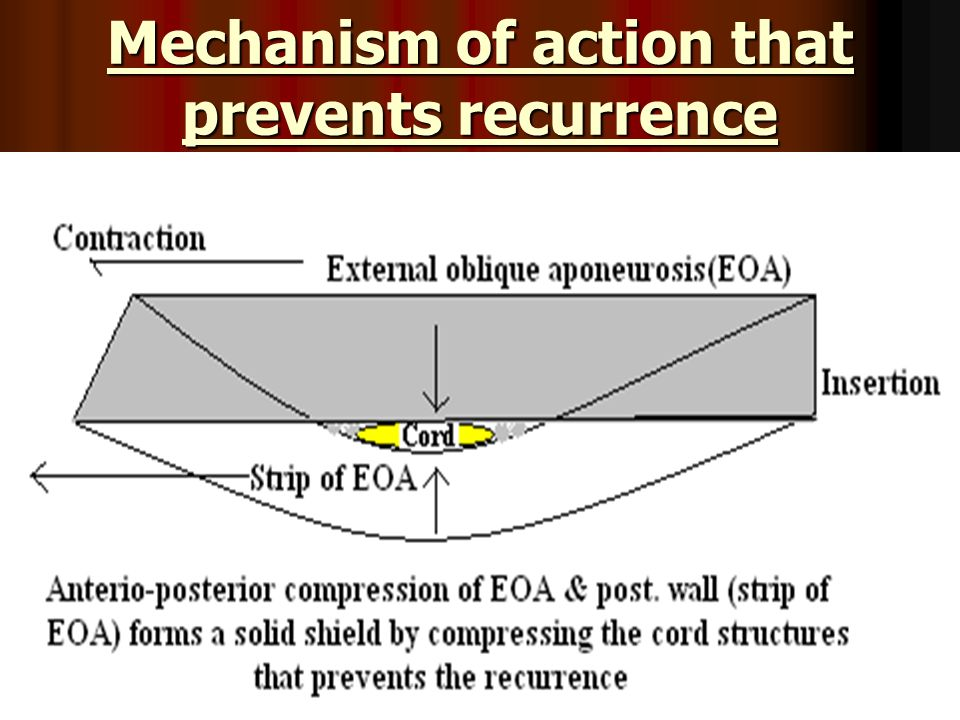 Mechanism of action that prevents recurrence