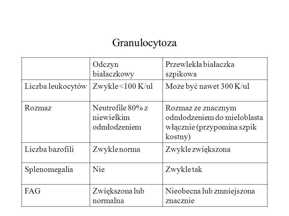 Granulocytoza Odczyn białaczkowy Przewlekła białaczka szpikowa