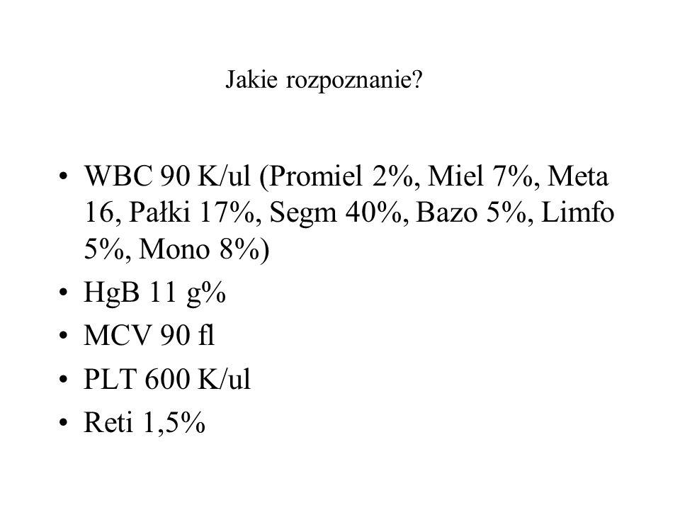 Jakie rozpoznanie WBC 90 K/ul (Promiel 2%, Miel 7%, Meta 16, Pałki 17%, Segm 40%, Bazo 5%, Limfo 5%, Mono 8%)
