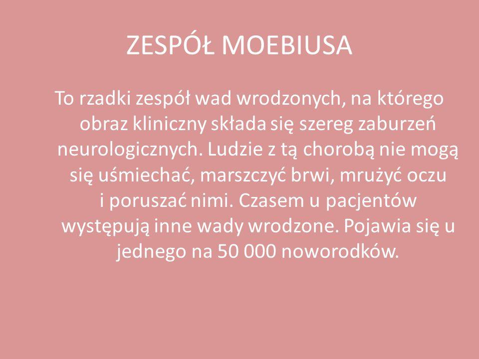 ZESPÓŁ MOEBIUSA