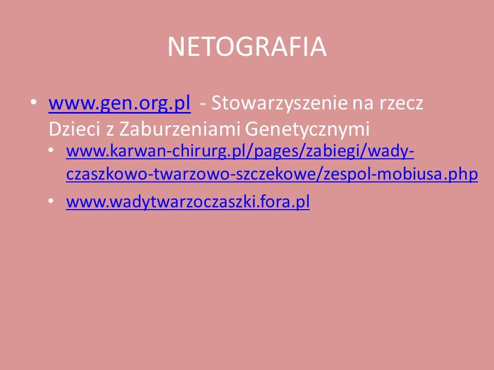 NETOGRAFIA www.karwan-chirurg.pl/pages/zabiegi/wady-czaszkowo-twarzowo-szczekowe/zespol-mobiusa.php.