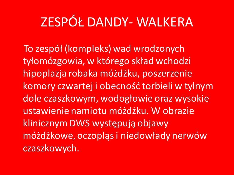 ZESPÓŁ DANDY- WALKERA
