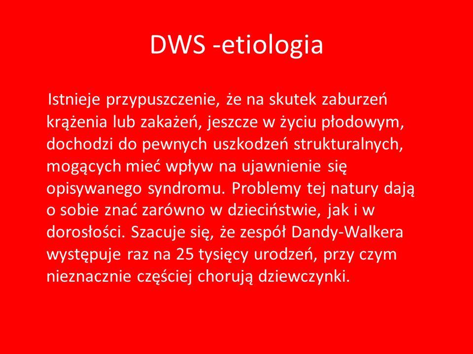 DWS -etiologia