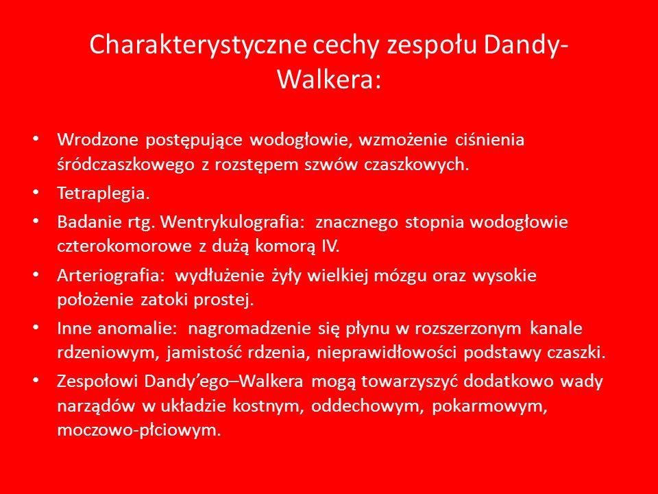 Charakterystyczne cechy zespołu Dandy-Walkera: